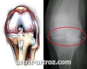 harakteristika-stepenej-artroza