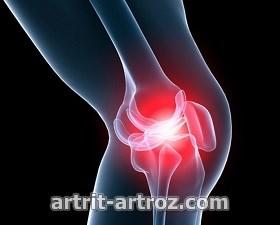osteoartroz-stadii