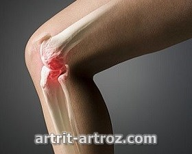 osteoartroz-sustavov