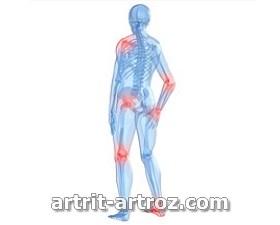 полиостеоартроз суставов
