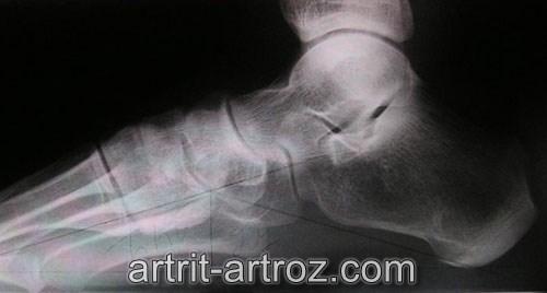 Доа суставов нижних конечностей мазь при надрыве связок коленного сустава