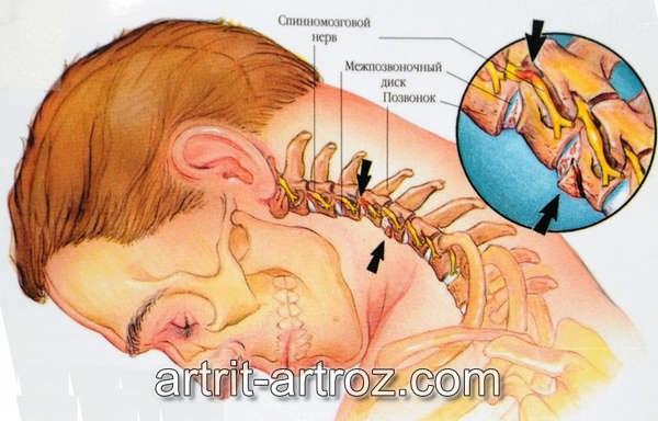 схема остеохондроза шеи
