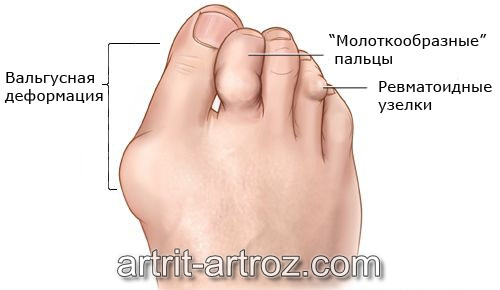 Деформирующий сустав на пальце руки коленный сустав диагностика