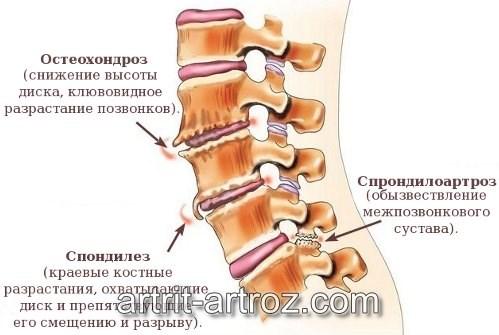 Боли в шее и шум в правом ухе