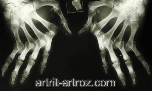 снимок костей рук