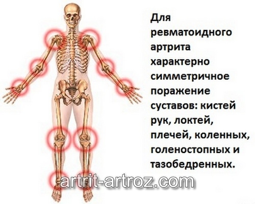 История болезни ревматоидный полиартрит