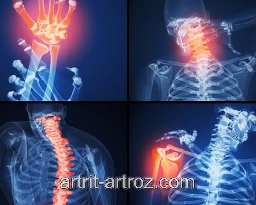 Верхнечелюстной сустав артрит причины психосоматика.