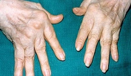 больние пальцы
