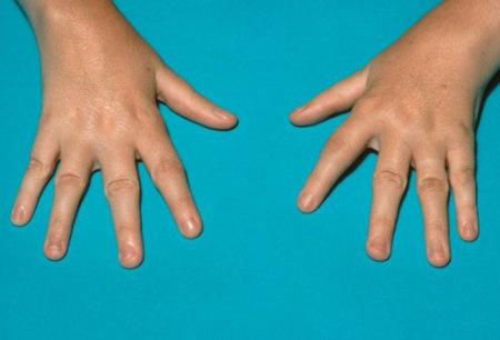 больные пальцы ребёнка