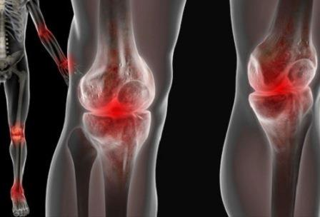 инстраграма больных суставов колен