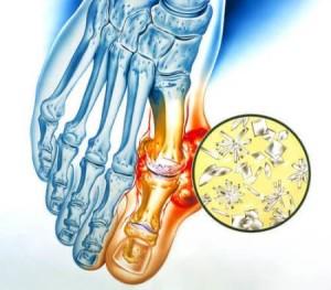 инстраграма поражения суставов пальцев стоп
