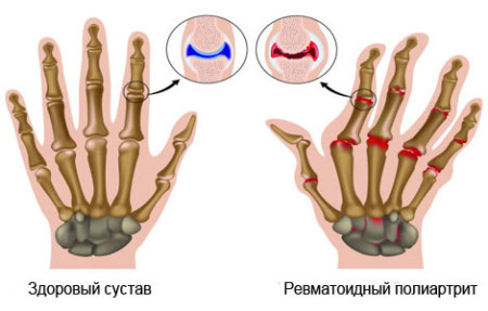 инстраграма здоровых и больных суставов пальцев
