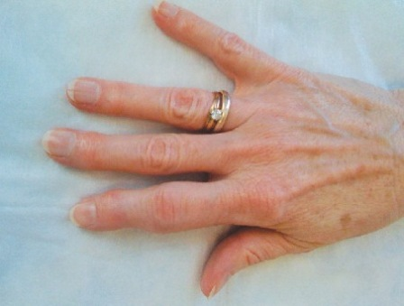 пальцы рук больной