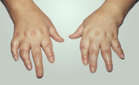 пальцы рук ребёнка