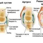 Артрозо-артрит: лечение болезни в коленном, голеностопном и других суставах