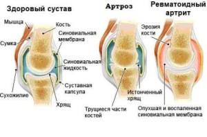 рисунок здорового и больных суставов