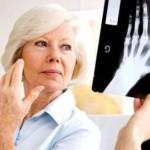 Полиартрит суставов: симптомы и лечение заболевания