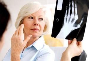 женщина смотрит снимок кисти руки