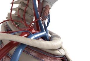 Синдром позвоночной артерии проявляется острой болью