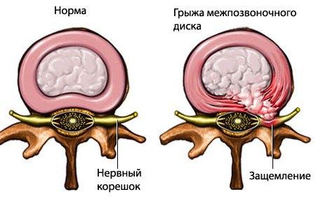 межпозвонковый диск в норме и с грыжей
