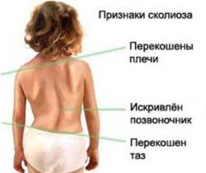 признаки сколиоза