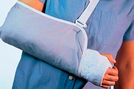гипсовая повязка на руке