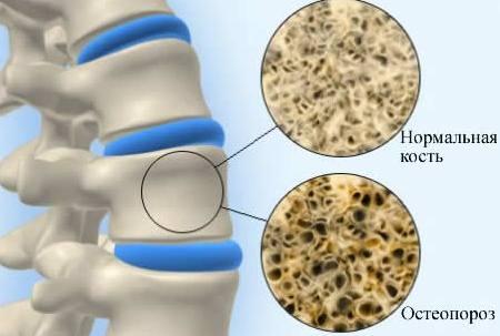 поврежденная остеопорозом кость