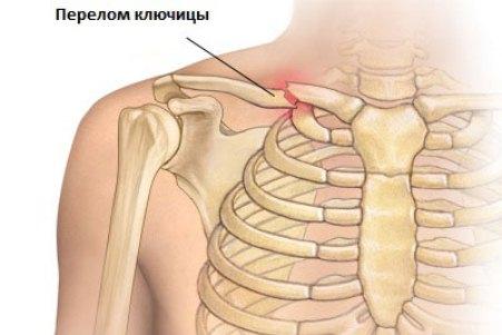 Артрит ключицы лечение Все про суставы