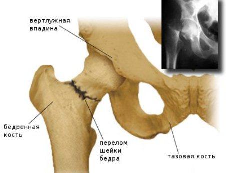 Перелом шейки бедра у пожилых людей – симптомы и лечение