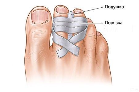 перевязка при переломе пальца