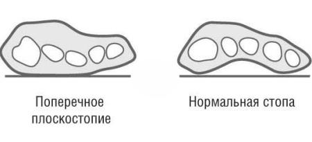 поперечное плоскостопие