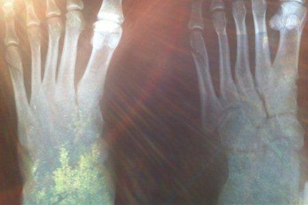 рентген перелома кости