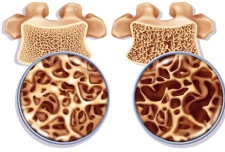 состояние костей при остеопорозе