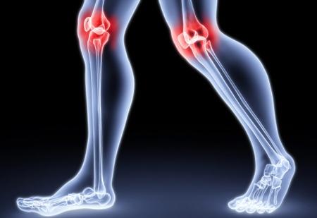 Как лечить сухожилия ноги народными средствами