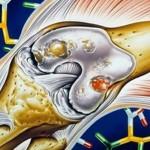 Воспаление коленного сустава как снять и что делать