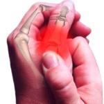 Полиартрит: общая характеристика и виды болезни