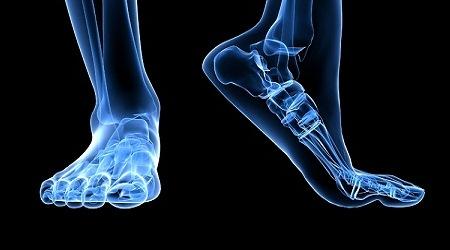 полиартрит суставов стопы