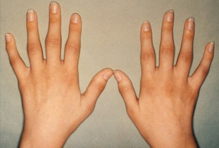 суставы кистей рук