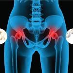 Остеоартрит и остеоартроз воспалительного происхождения почему возникает?