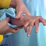 Больные артритом рискуют заболеть и остеопорозом