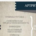 Информация об артрите (инфографик)