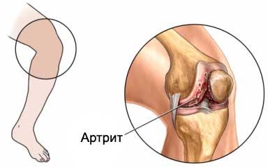 рисунок артрита в коленном суставе