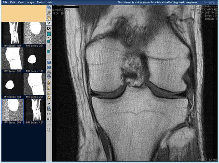 рентген-снимок