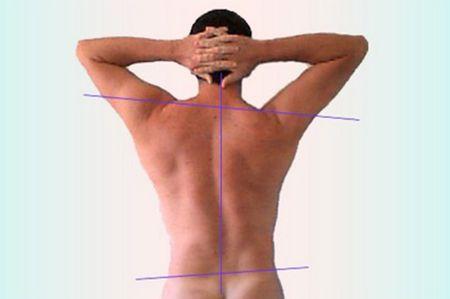 спина мужчины с искривленным позвоночником