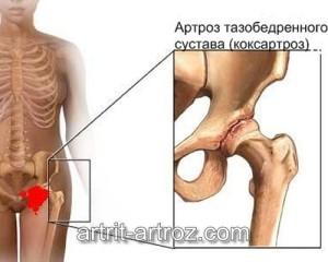 картинка воспаленного сустава