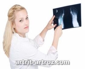 deformirujushhij-artroz