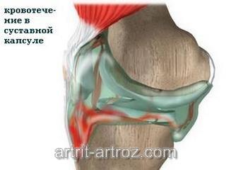 изображение травмированного коленного сустава