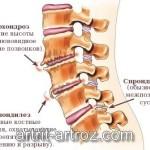 Спондилоартроз шейного отдела позвоночника: лечение и симптомы болезни