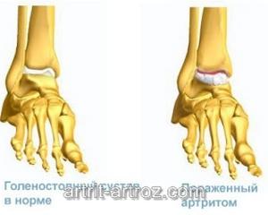 строение ног человека
