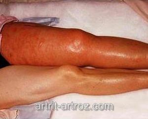 ноги человека при заболевании